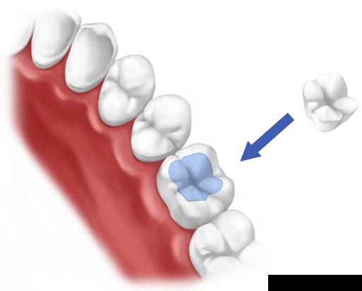 Dental inlays & onlays | Notting Hill | Dentist W2 | Number 18 ...